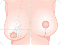 Breast reduction short scar